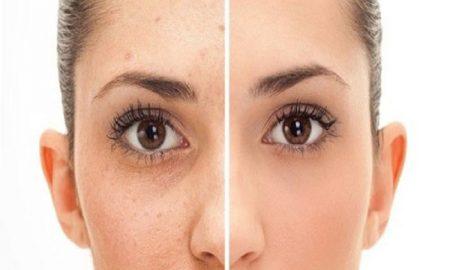 Cara menghilangkan flek hitam pada wajah secara alami.1