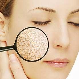 Tips perawatan untuk kulit kering