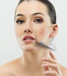 Cara menghilangkan bekas luka pada wajah