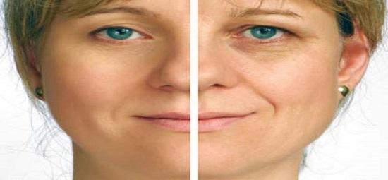 6 Penyebab Kerutan Dini Pada Wajah