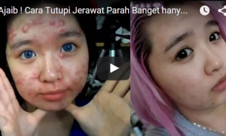 Ajaib ! Cara Tutupi Jerawat Parah Banget hanya dengan Makeup
