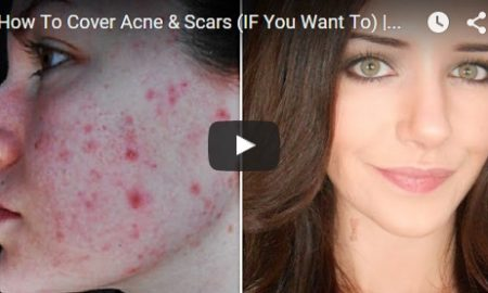 How To Cover Acne & Scars (IF You Want To