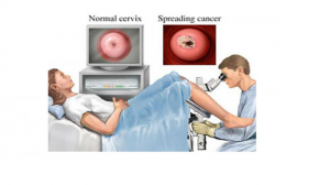 Kanker-Serviks