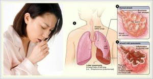 Akibat kuman Tuberkulosis makin kebal