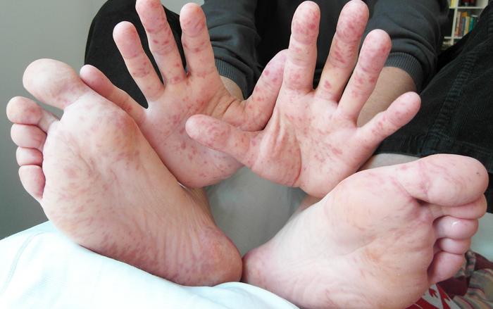 Gejala Enterovirus Yang Dapat Menyebabkan Penyakit Tangan, Kaki Dan Mulut