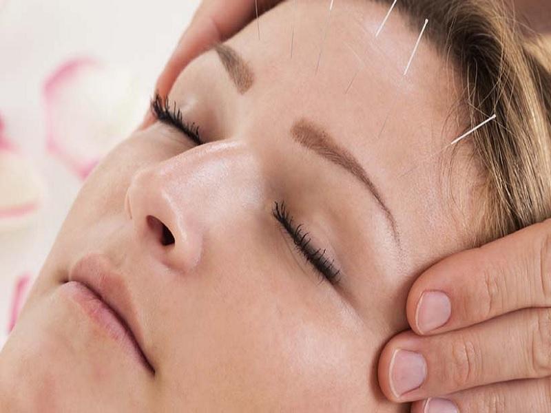 Akupuntur Salah Satu Metode Perawatan Wajah Terbaik
