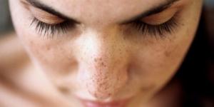 Perawatan Wajah Terbaik Untuk Membentuk Repigmentasi Kulit