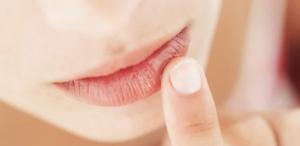Solusi Permasalahan Bibir Untuk Melakukan Perawatan Wajah Terbaik