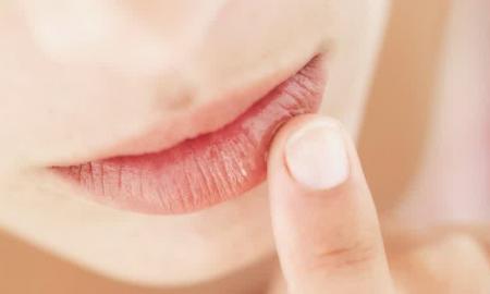 perawatan pada bibir kering