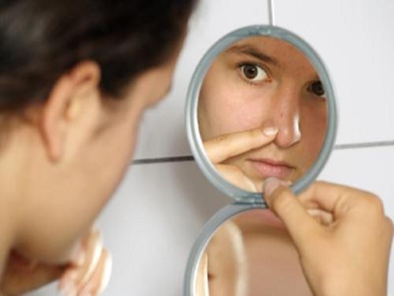 bahan penghilang komedo di wajah
