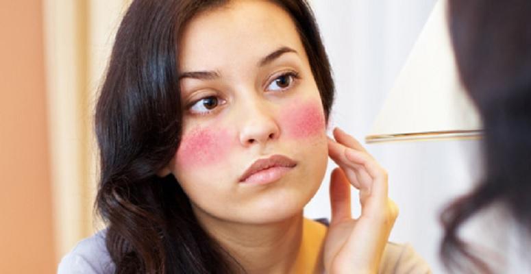 5-cara-mengatasi-alergi-kosmetik-pada-wajah