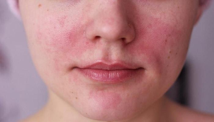 penyebab-penyakit-kulit-rosacea-yang-belum-diketahui-banyak-wanita