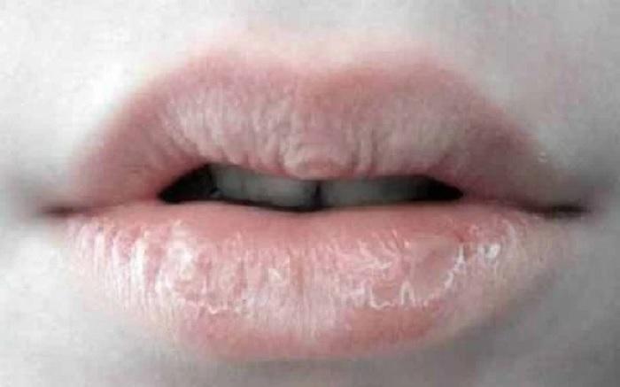 sadari-penyebab-bibir-mengelupas