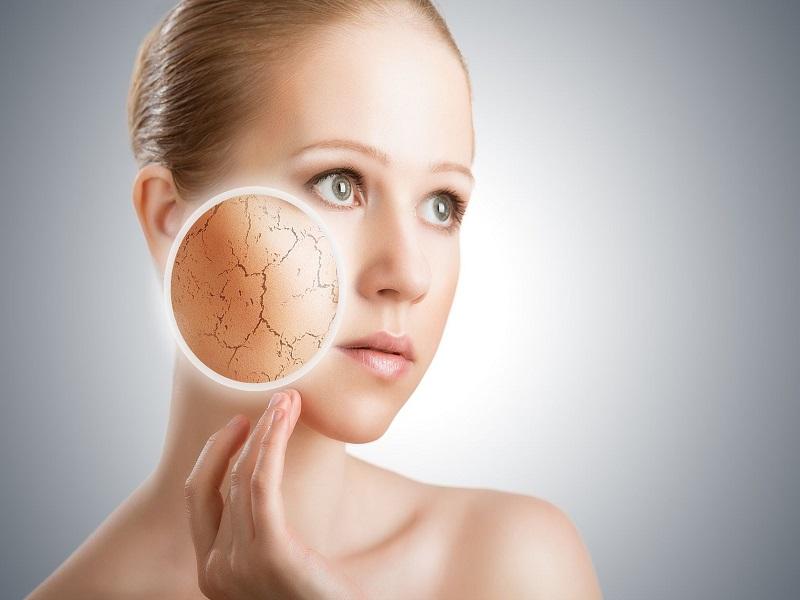 Tips Perawatan Kulit Kering untuk Wajah