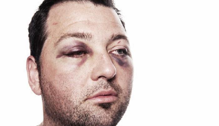 5-cara-menghilangkan-luka-memar-atau-lebam-di-wajah