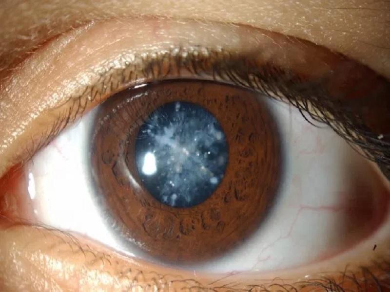 Apa Saja Komplikasi Mata Akibat Penyakit Diabetes
