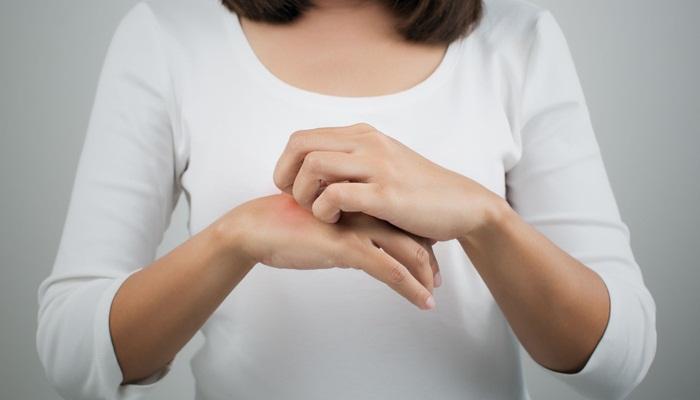 cara-ampuh-atasi-alergi-kulit