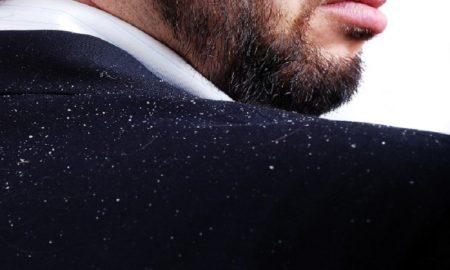 Tips Natural Untuk Mengusir Ketombe Yang Menganggu Kepala Anda