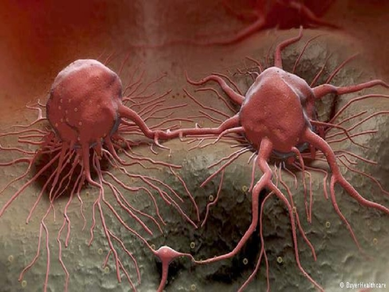 Penyebab Munculnya Kanker