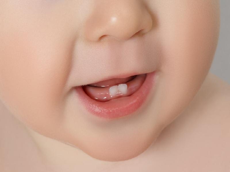 Benarkah Bayi Akan Demam Saat Tumbuh Gigi
