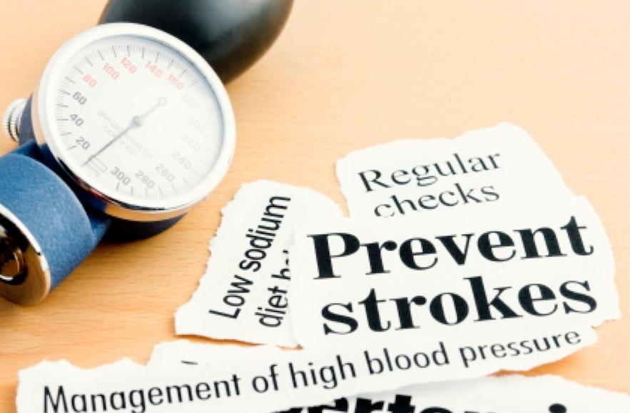 Cara mencegah penyakin stroke sejak dini