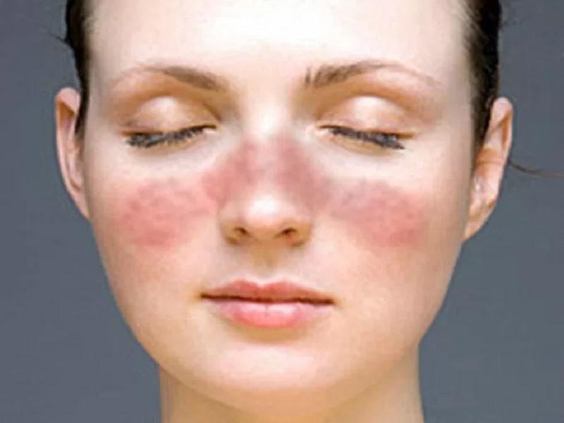 Perawatan Penyakit Lupus Paling Alami