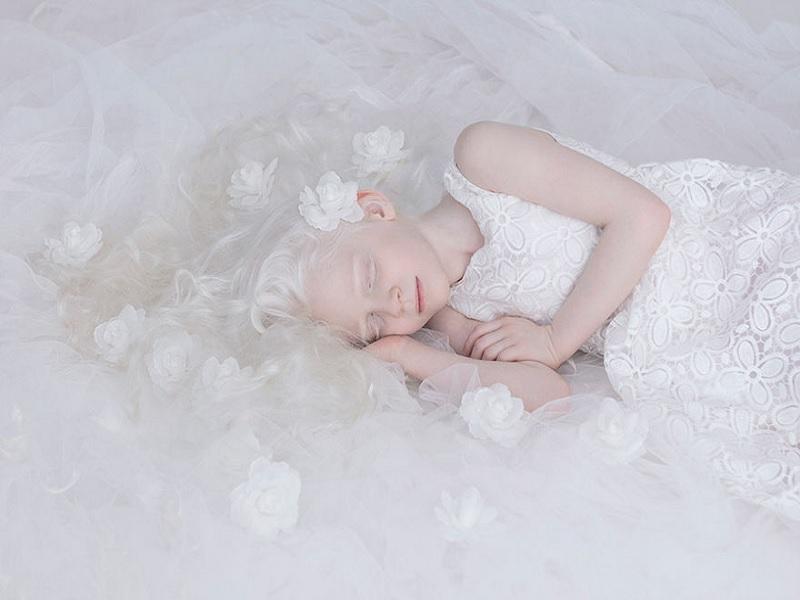 bagaimana kecantikan penderita albino bisa memikat