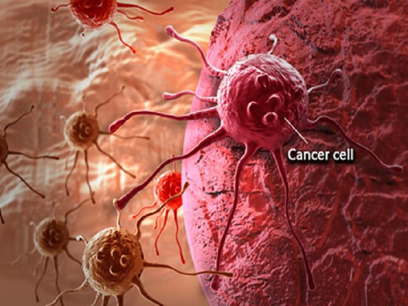 mengenal lebih dekat kanker serviks