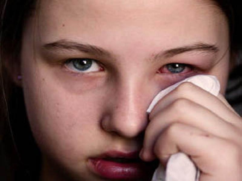 penyebab mata gatal yang sering diremehkan