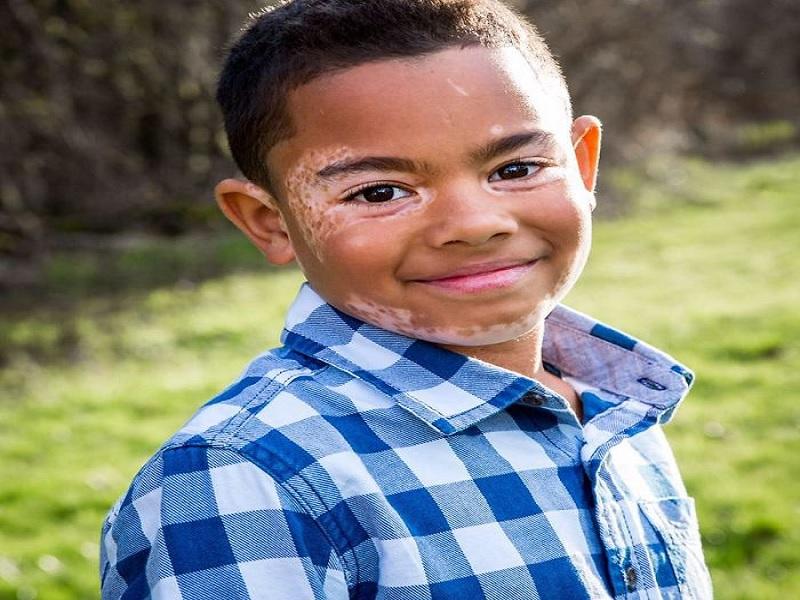 tips percaya diri setelah terkena penyakit kulit