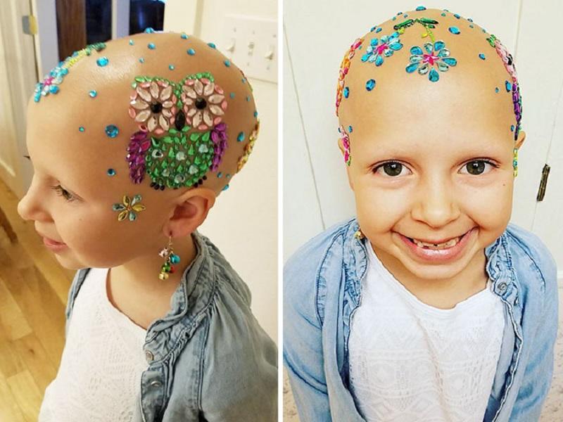 fakta mengejutkan tentang penyakit alopecia
