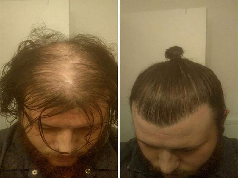 sikap yang dilakukan saat terkena gejala botak
