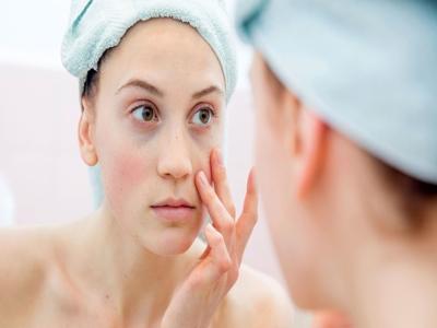 Mengapa Hindari Skincare Saat Puasa6