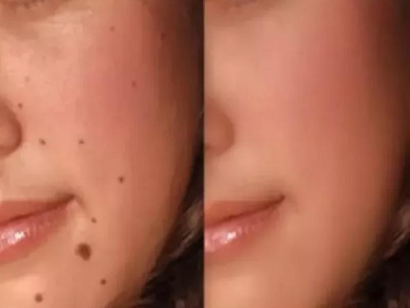 tips menghilangkan tahi lalat diwajah secara alami