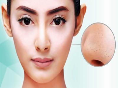Tips Hilangkan Komedo Di Hidung2