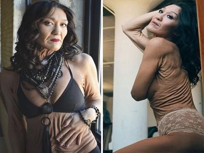 cara mengakui kecantikan tubuh tanpa syarat