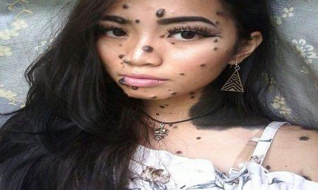 merasa cantik dengan tahi lalat di wajah