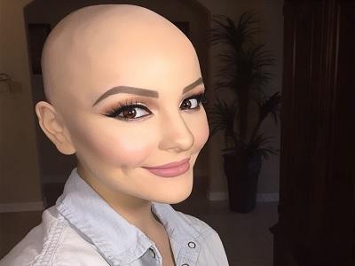Bagaimana kehilangan rambut bukan berarti tidak cantik