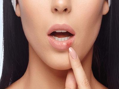 Berhenti Merawat Bibir Ternyata Ada Dampaknya Lho4