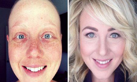 tips cara mendukung penderita kanker agar bangkit