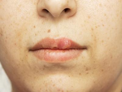 Efek Menggunakan Lipstik Terlalu Lama
