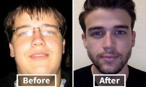 alasan mengapa diet ketat merubah penampilan wajah